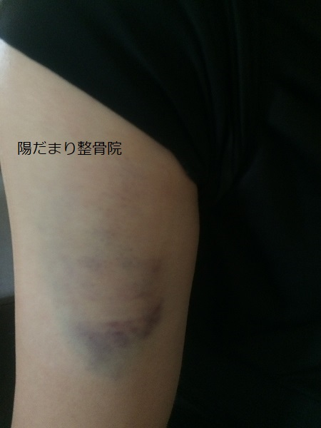 【症例】腕の肉離れ